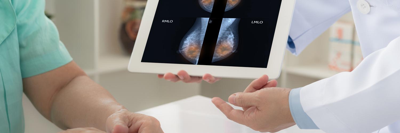 ¿Con qué frecuencia debes hacerte un examen de despistaje de cáncer?